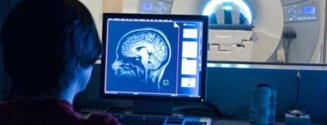 brain-research10